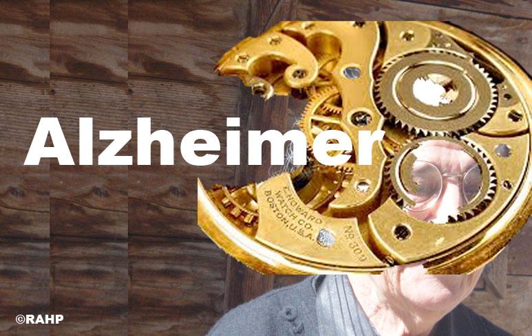 54_Alzheimer773
