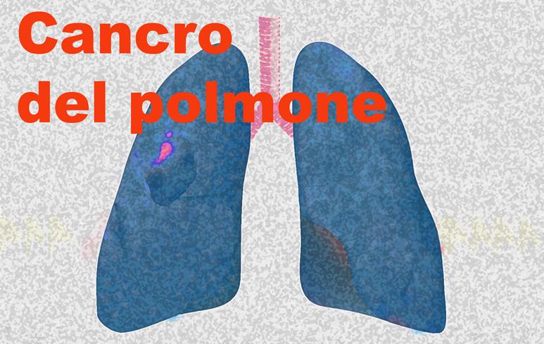 107_CancroPolmone_773