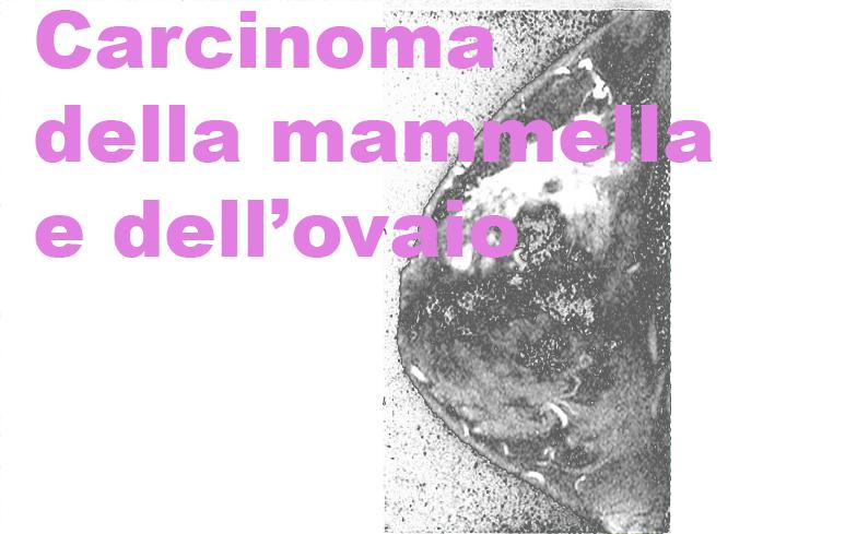 120_Carcinoma_mammella