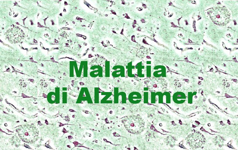 122_Malatita di Alzheimer