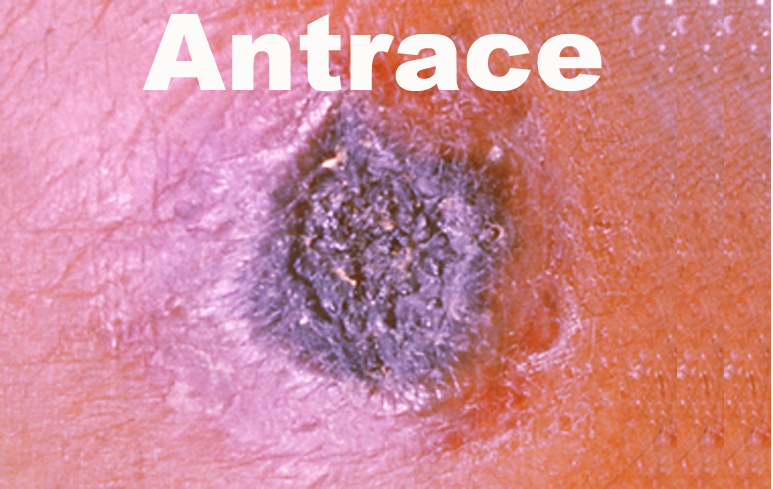 128_Antrace