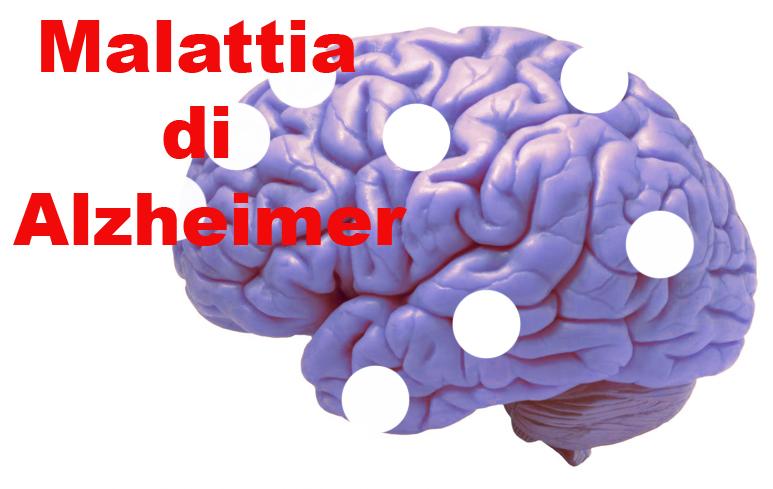73_AlzheimerCervello773
