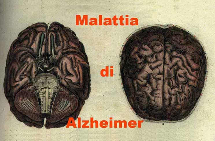75_Alzheimer773