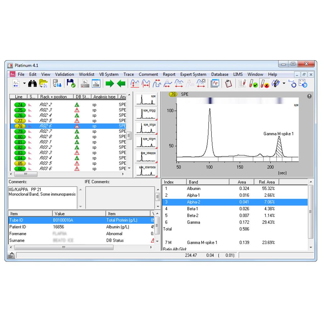 elettroforesi-software-platinum