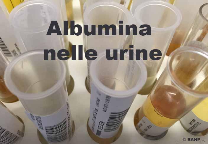 151_Provette urine
