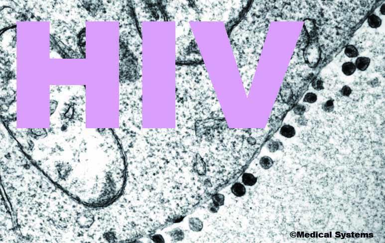157_HIV