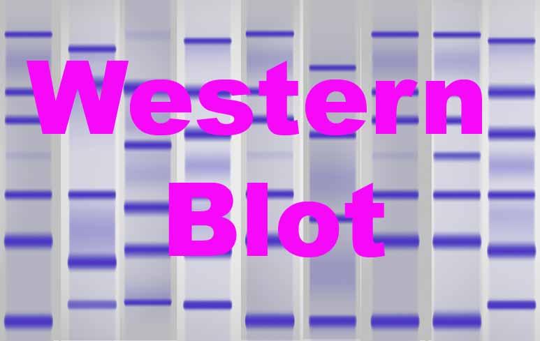 156_WesternBlot