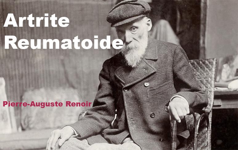 183_Artrite Reumatoide