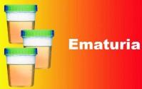 199_Ematuria