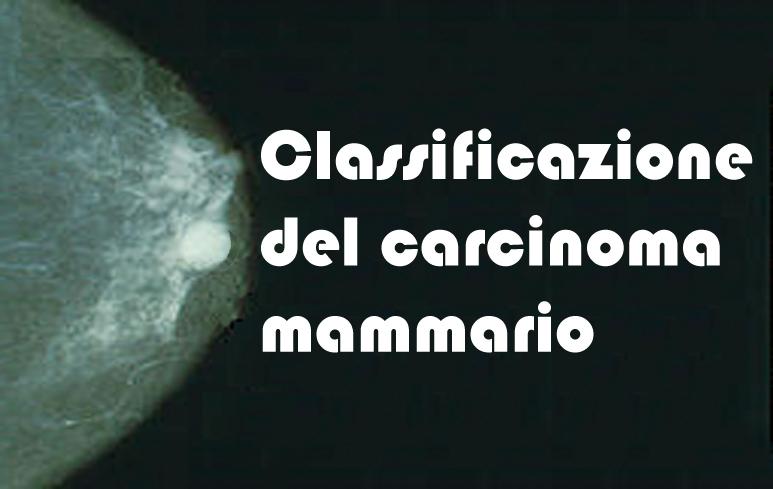 242_Carcinoma mammario