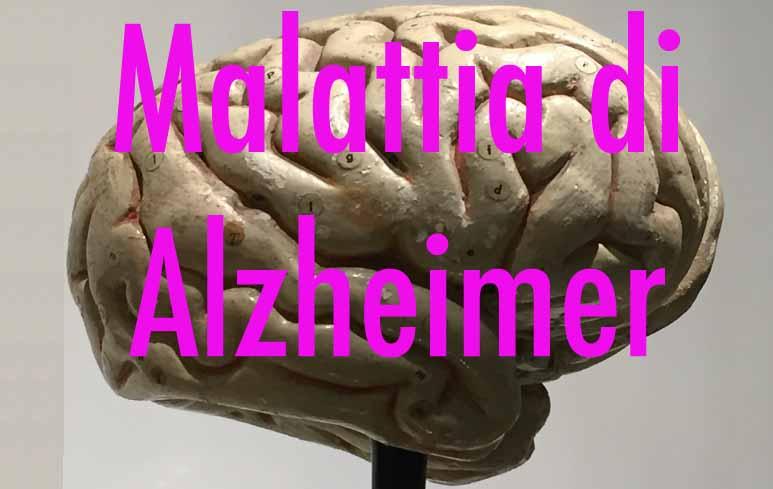 267_Alzheimer
