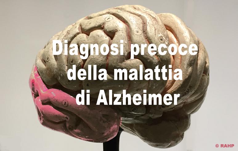 307_Alzheimer