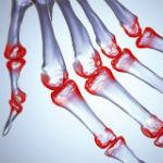 artrite reumat