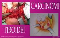 342_Carcinomi tiroidei