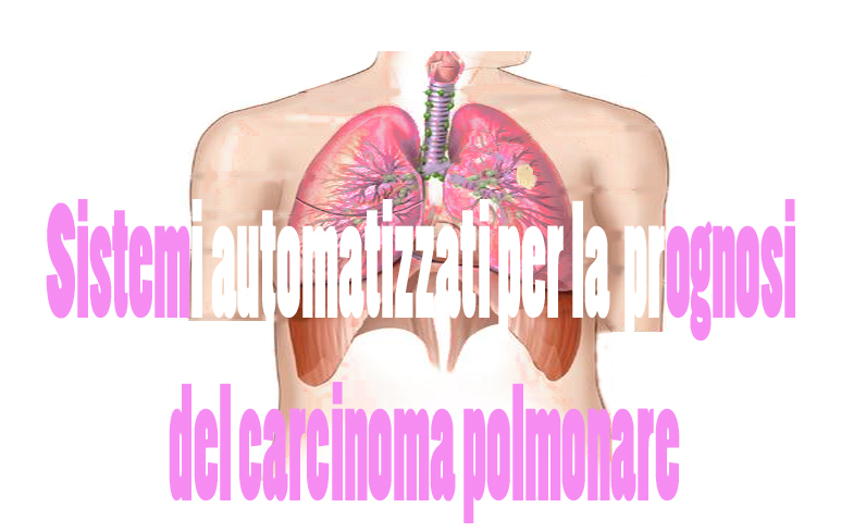 350_Carcinoma polmonare