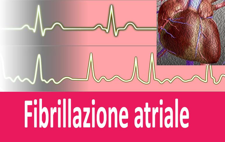 365_fibrillazione-atriale