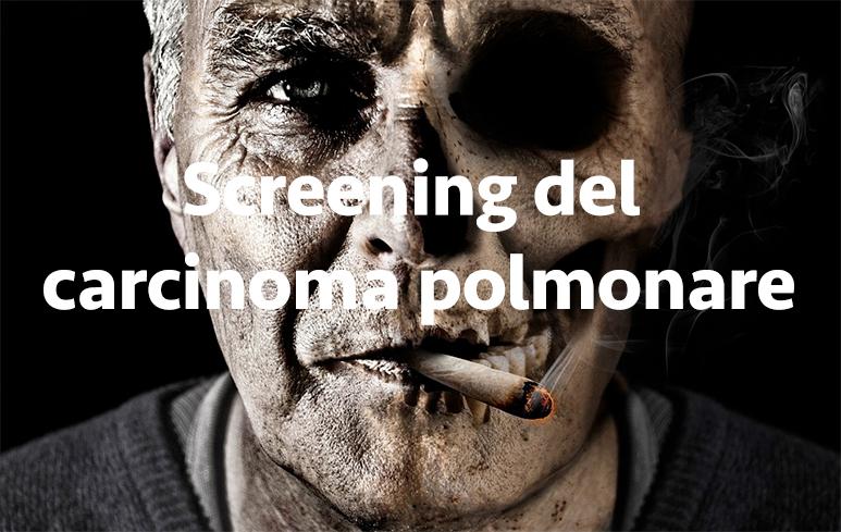 461_Carcinoma polmone