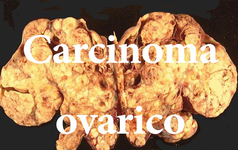 473_carcinoma ovarico