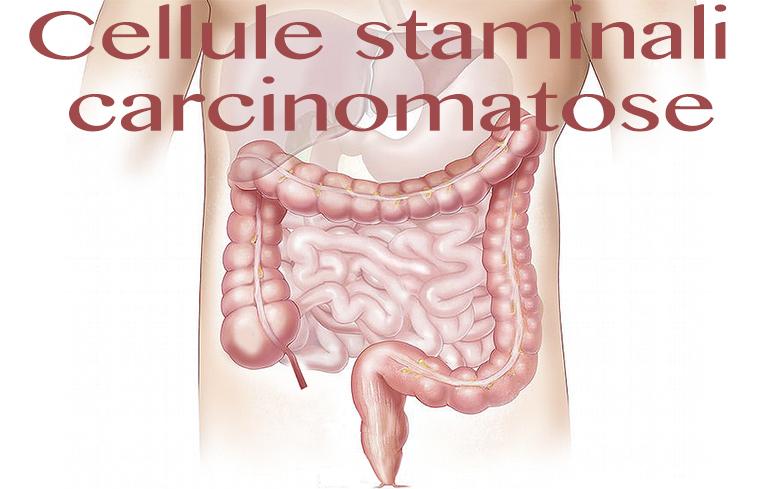 503_Cellule staminali carcinomatose