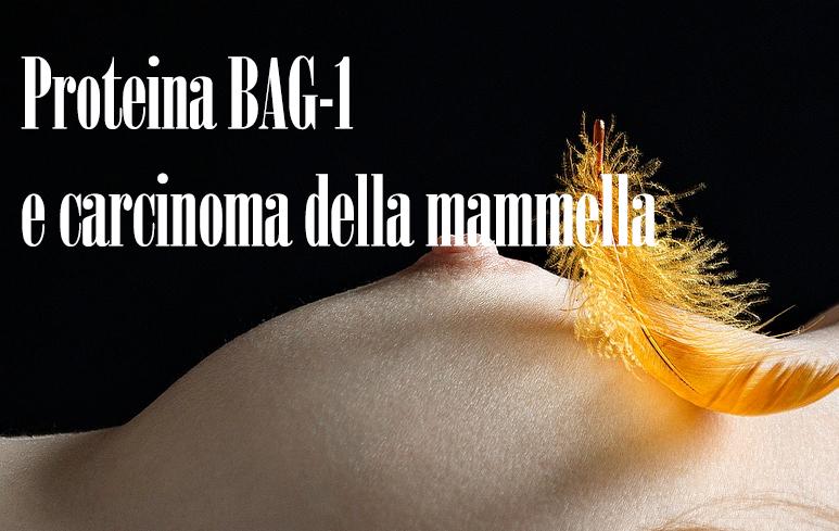 531_K mammella