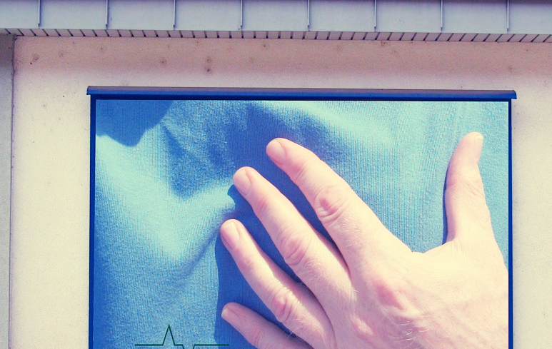 535_Infarto miocardio