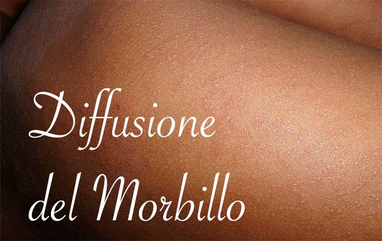 581_Morbillo2