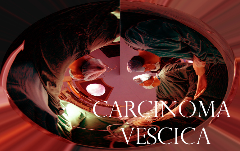 593_Carcinoma vescica