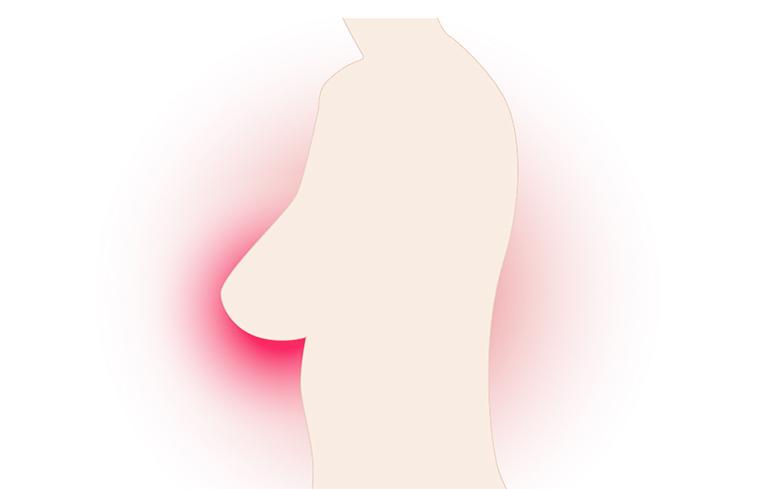 633_Carcinoma mammella