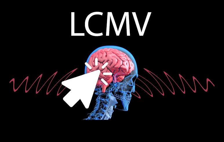 639_LCMV