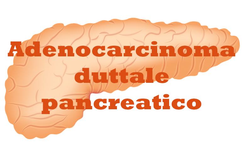 659_Carcinoma duttale pancreatico
