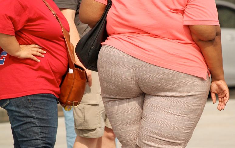 668_Obesità