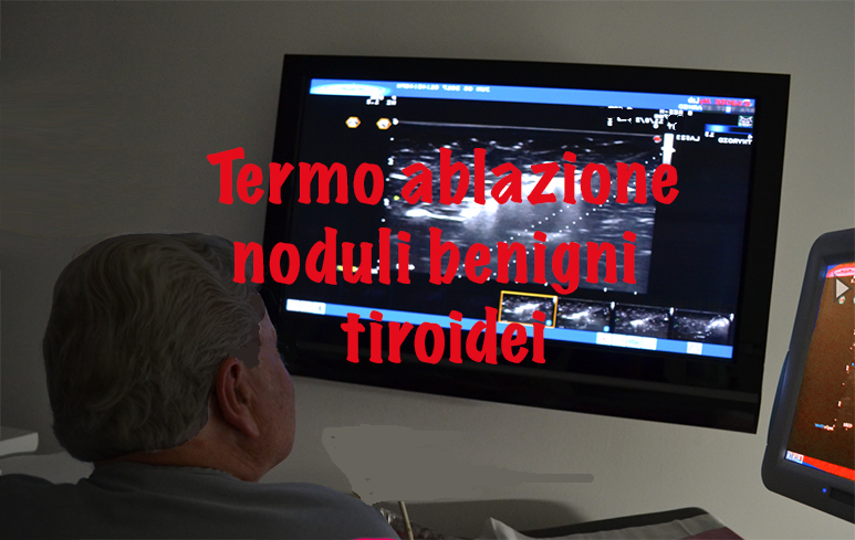 884_Noduli tiroidei