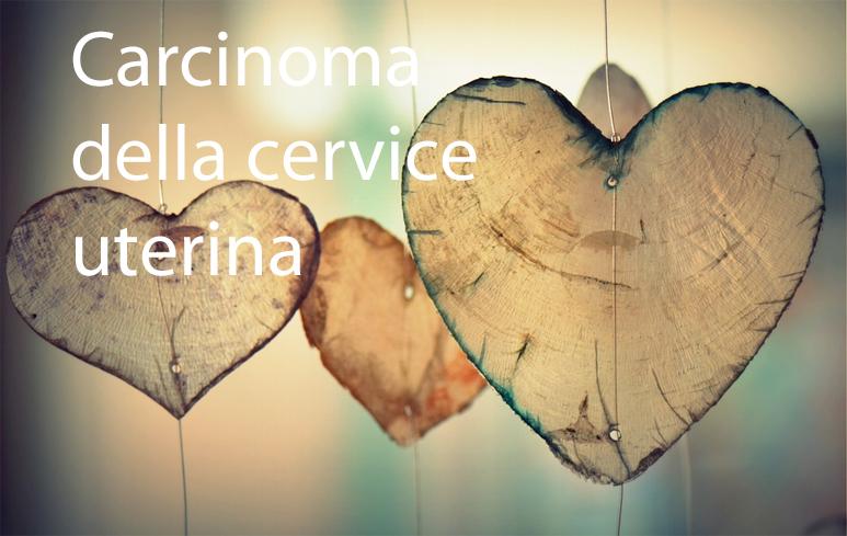 923_Carcinoma cervice