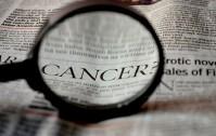 933_Carcinoma prostata