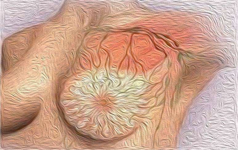 940_Tumore mammella