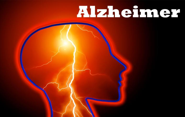 941_Alzheimer