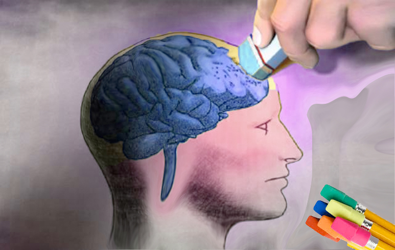 1012_Alzheimer