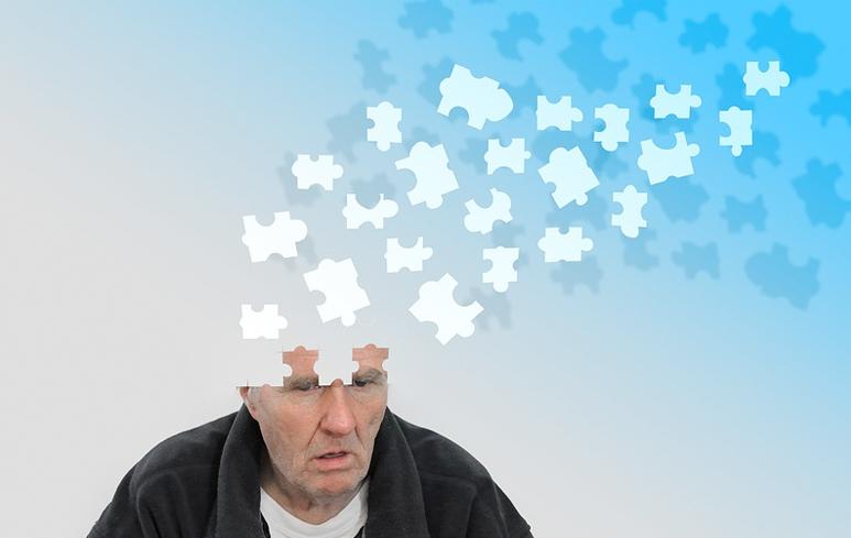 1022_Alzheimer