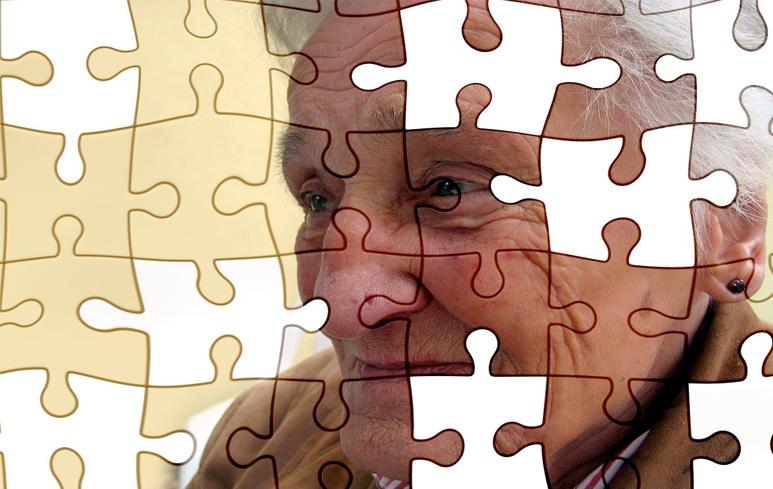 1047_Alzheimer