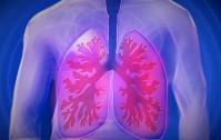 1063_Tumore polmonare
