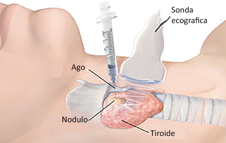 1136_Noduli tiroidei