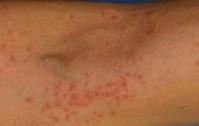 1232_Dermatite