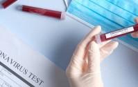 test-coronavirus-34229.660x368